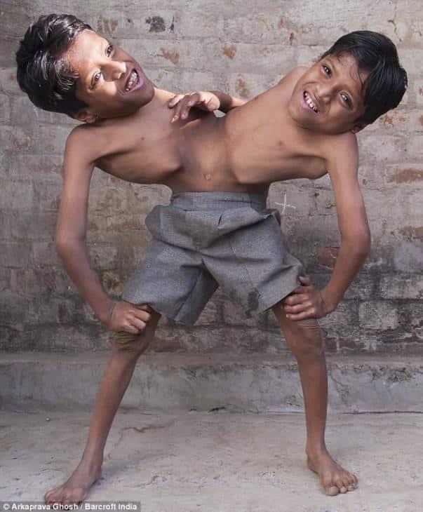 Los siameses indios unidos por la cintura que no quieren ser separados