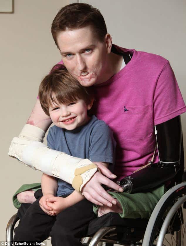 Este padre perdió ambas piernas y un brazo a causa de una bacteria carnívora