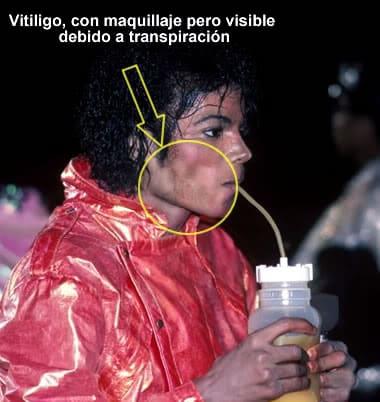 michael jackson maquillaje vitiligo