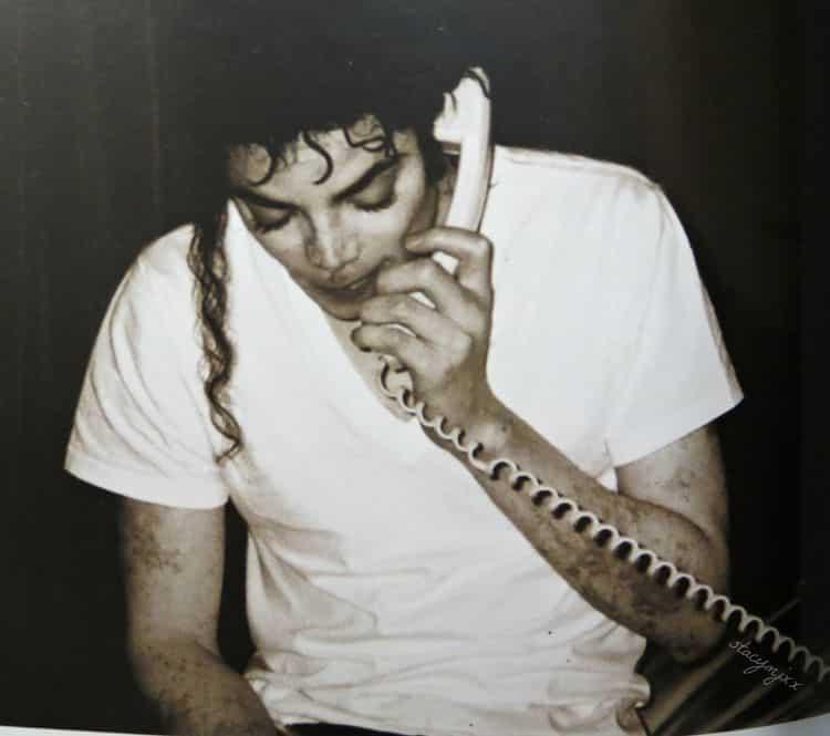 micjael jackson vitiligo